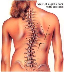 scoliosis1