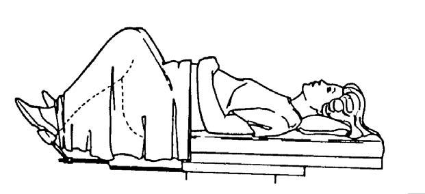 lithotomy-position-8789_3